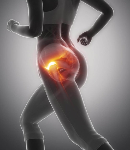 Sportverletzungen Sporttraumatologie